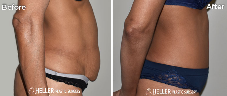 Tummy Tuck Right Case 14