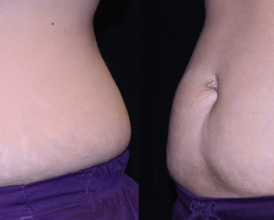Tummy Surgery - Before and After 4